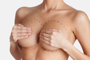 bigstock-Tits-correction-Plastic-surge-35814509